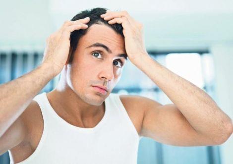 Чому чоловіки лисіють передчасно?