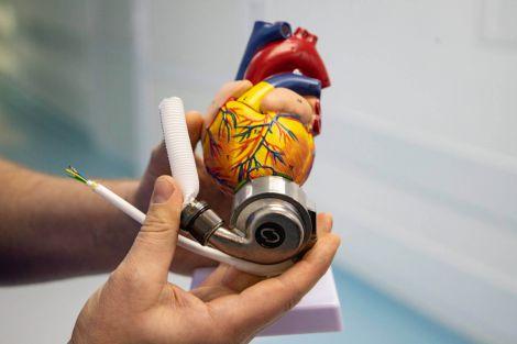 Корисний імплант для серця