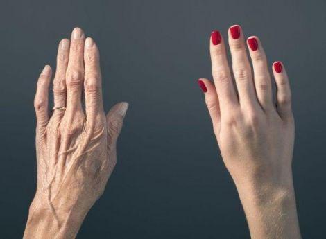 Про які захворювання розкажуть руки?