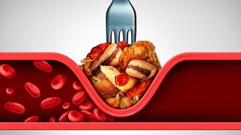 """Як знизити """"поганий"""" холестерин: розкрито 7 простих способів"""