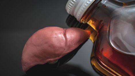Названо алкогольні напої, які викликають жирову хворобу печінки
