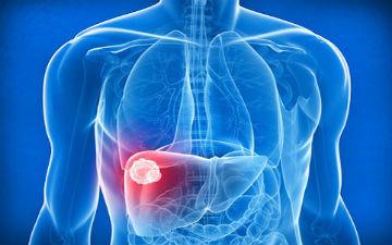 Дещо про рак печінки