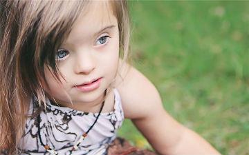 Діток із синдромом Дауна потрібно виховувати по-особливому та приділяти більше уваги