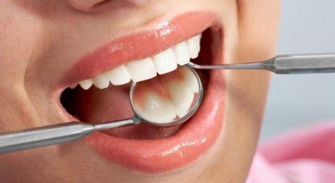 Женщины должны тщательно следить за своими зубами