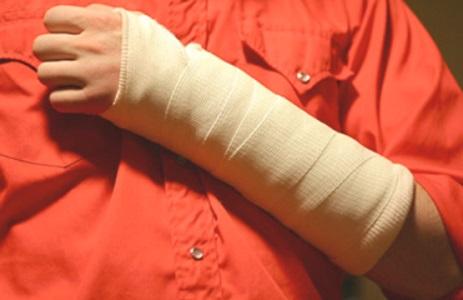 Первые симптомы повреждения вращательной манжеты плеча