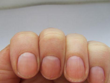 Хвороба роз'їдає нігті