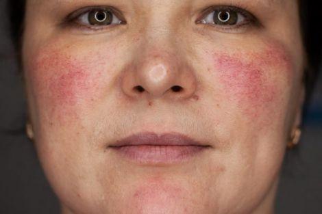 Лечение купероза кожи лица