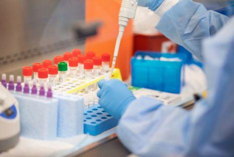 Смертність від COVID-19 значно вища, ніж від грипу