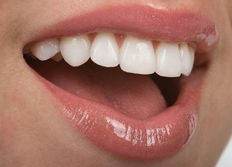 Продукти, які руйнують зубну емаль