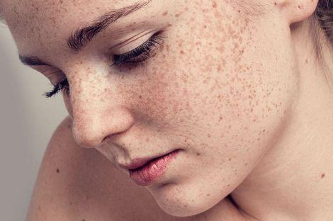 Як позбутись пігментації на обличчі?