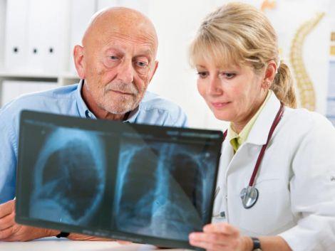 Як розпізнати розсіяний склероз на ранніх стадіях?