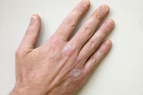 Лікування псоріазу