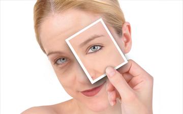 засоби домашньої косметології допоможуть позбутись синців під очима