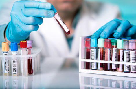 Хвороби власиків різних груп крові