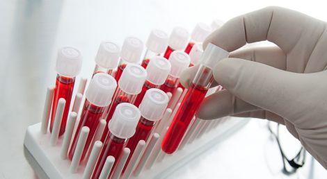 Симптоми зараження крові