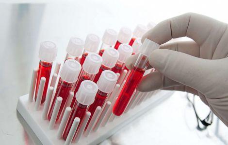 Яка група крові