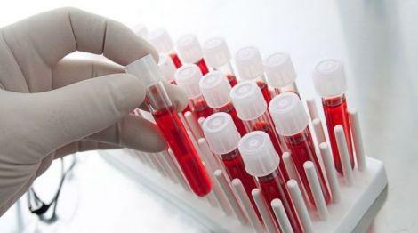 Група крові та довголіття