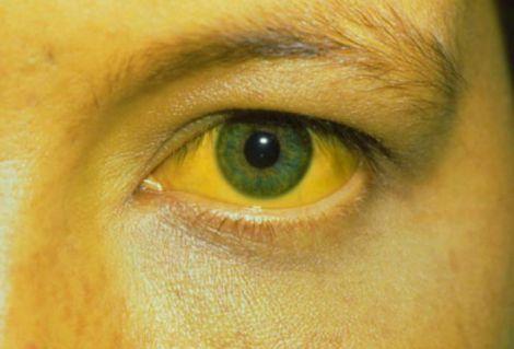 Жовта лихоманка - небезпечне захворвання, яке може спровокувати смерть