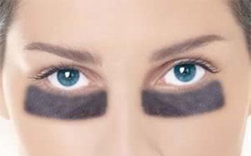 кола під очима можна усунути