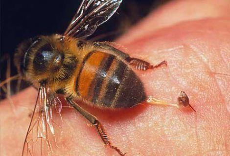 Укус бджоли