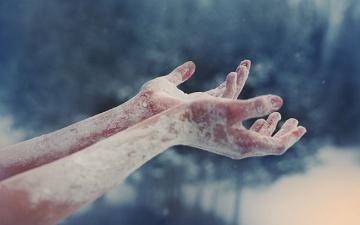 Холодні руки і ноги найчастіше бувають у гіпотоніків