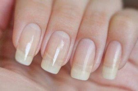 Плями на нігтях - сигнал про небезпечні хвороби
