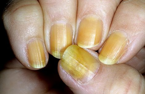 Чому ваші нігті жовтіють?
