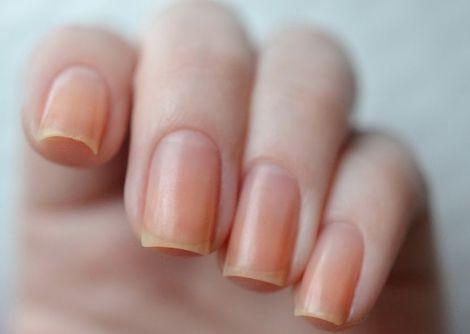 Причини пожовтіння нігтів