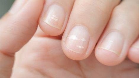 Білі смужки на нігтя- - симптом порушень в організмі