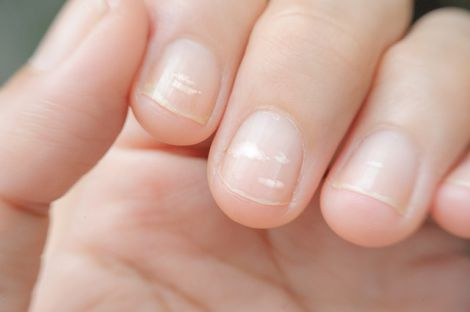 Білі смуги на нігтях