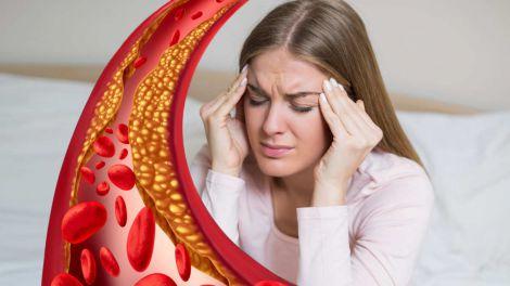 Невролог розповів про головні небезпеки високого рівня холестерину в крові