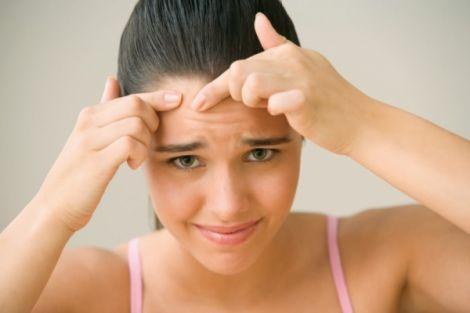 У підлітковому віці часто з'являються прищі