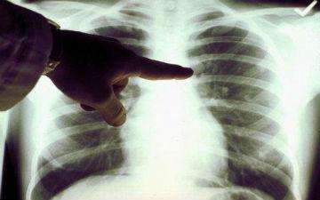 Ліки від тиску попереджають рак