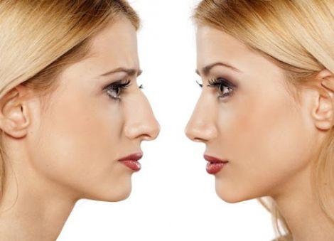 Зменшення носа