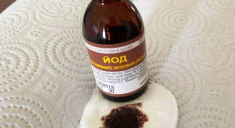 Медики не рекомендують використовувати йод