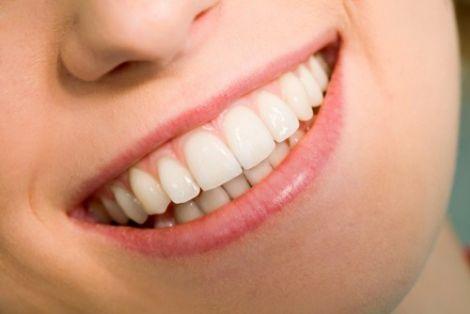 Здорова усмішка - ваша краса