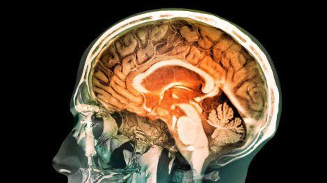 Як зберегти мозок молодим: 5 видів активності для зниження ризику деменції