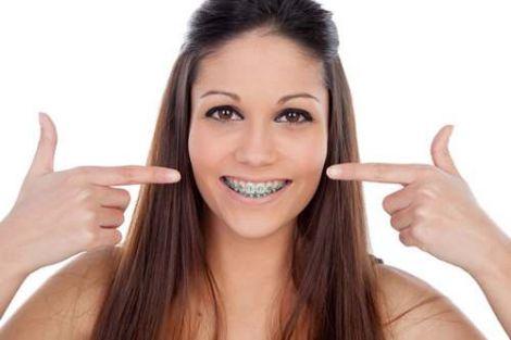 Брекеты во взрослом возрасте: рекомендации стоматологов