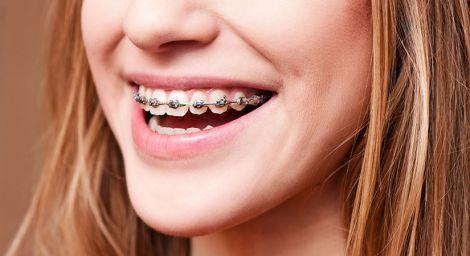 Идеальная улыбка: современные методы выравнивания зубов
