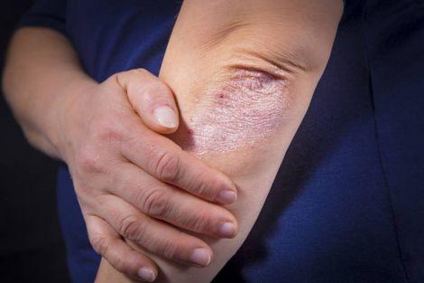 Захворювання судин та псоріаз