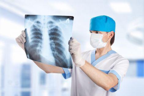 Туберкульоз легень
