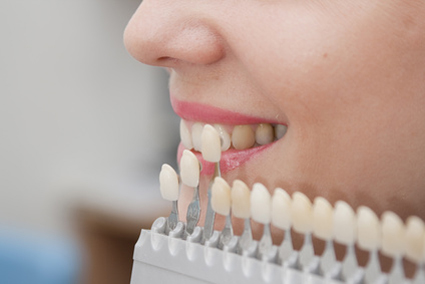 Что нужно знать о зубных имплантах ?