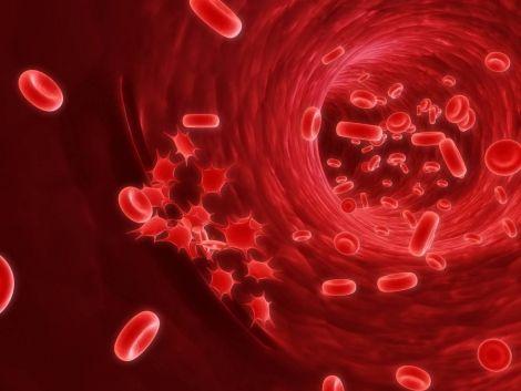 Рак крові: що це таке