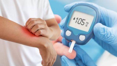 Діабет другого типу: які симптоми можуть з'явитися на шкірі