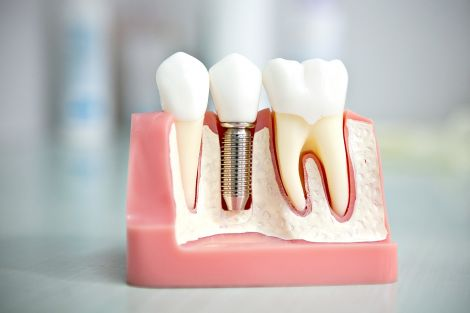 Імлантація зубів: показання та протипоказання