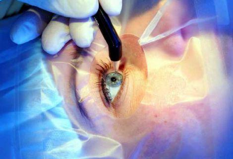 Етапи лазерної корекції зору