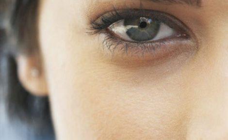 Причини появи і засоби позбавлення від темних кіл під очима