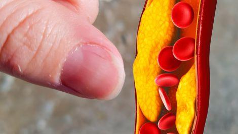 Високий холестерин: одна ознака на нігтях вкаже на небезпечний стан