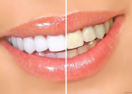 Білосніжні зуби