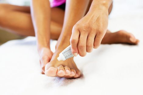 Профілактика грибка ніг
